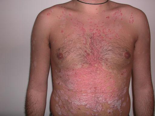 Eczema al bambino su curve